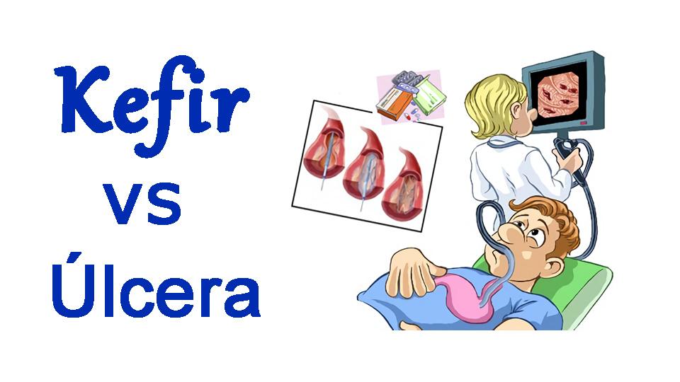 Kefir vs Ulcera péptica por H pylori